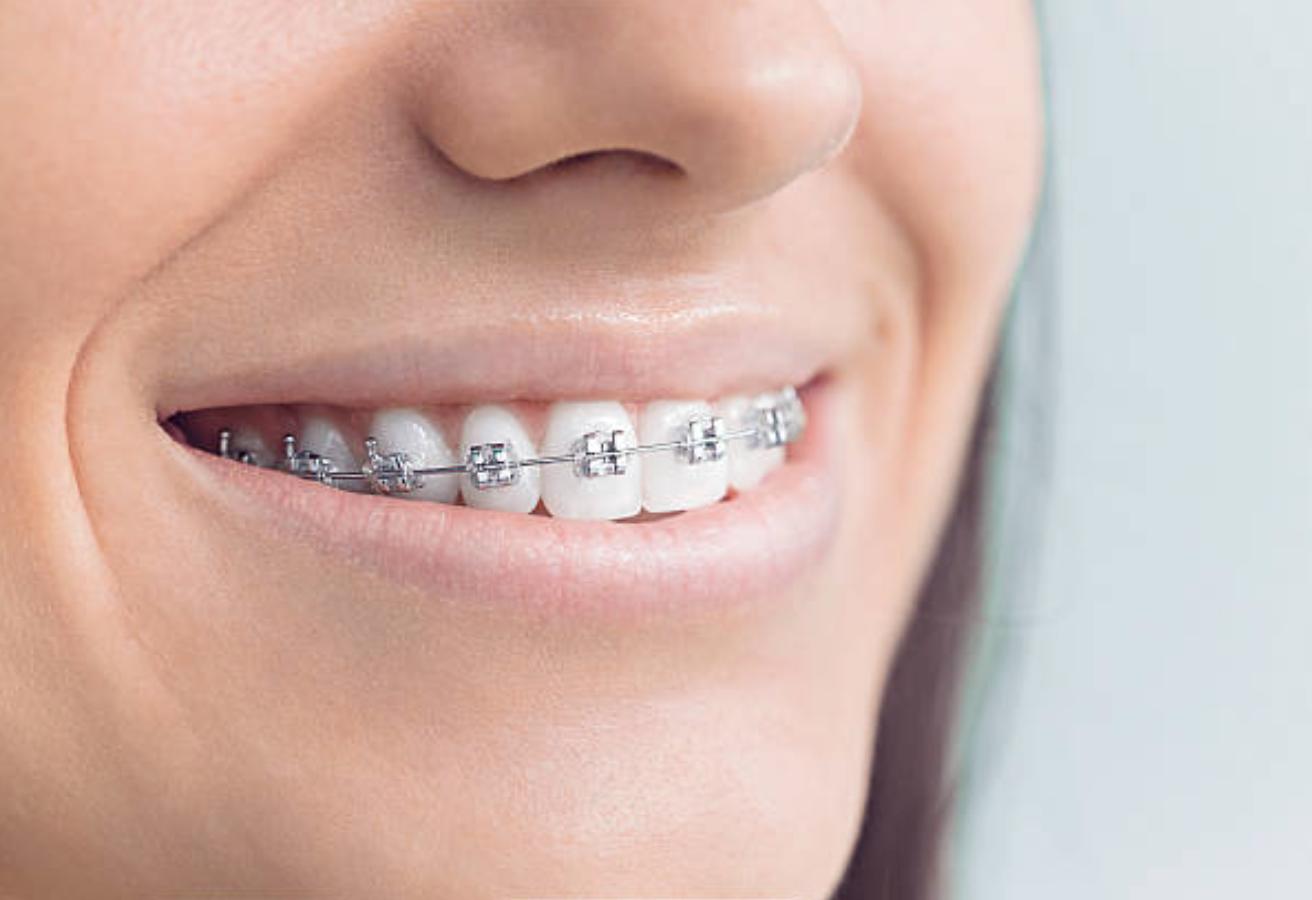 Székesfehérvár fogszabályozás Székesfehérvár fogszabályozó szakorvos